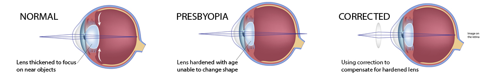 Presbyopia Spokane Eye Clinic b