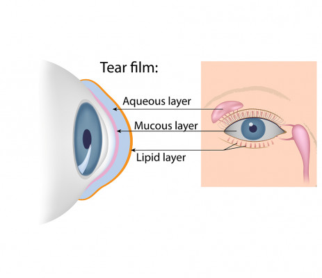 Tear Film Spokane Eye Clinic