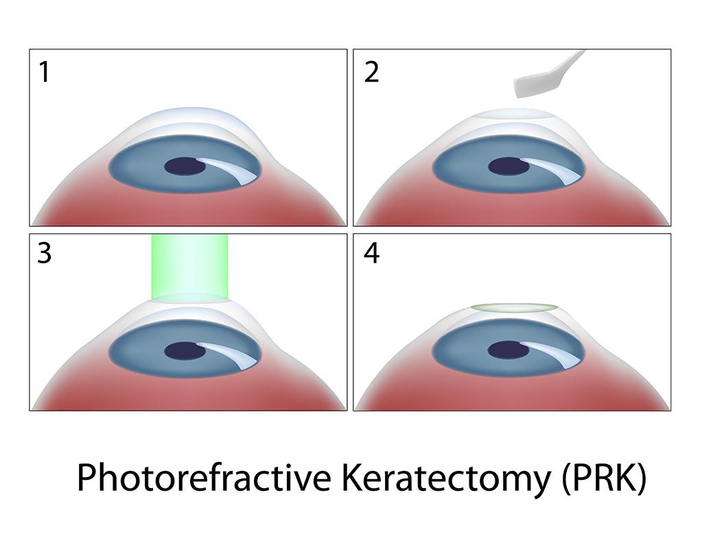 Faqs Lasik Prk Spokane Eye Clinic