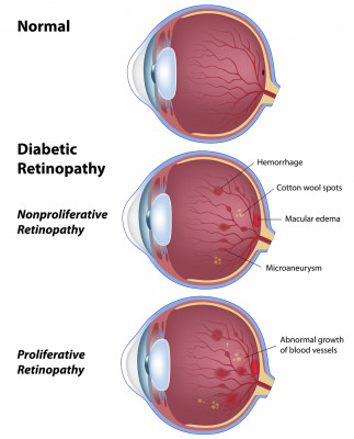 Diabetic Retinopathy Spokane Eye Clinic