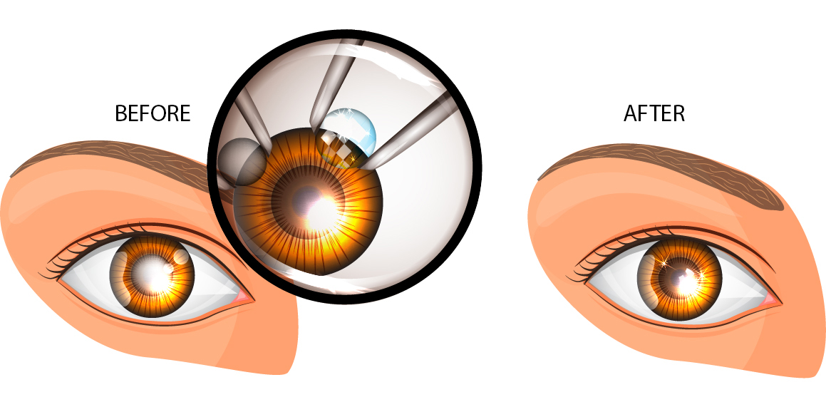 Cataract Replacement Lenses Spokane Eye Clinic