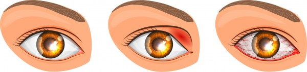 Conjunctivitis Spokane Eye Clinic copy